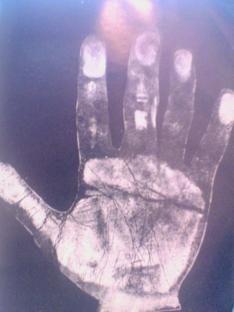 Hand Print of Dr. Meyer